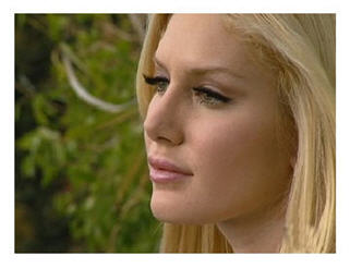 Heidi Montag cosmetic surgery: she talks about following in Michael Jacksons footsteps. Horrifying? No big deal?