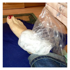 Icing a sprained ankle quelle betise